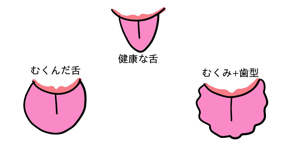 健康な舌、浮腫んで肥大した舌、浮腫んで歯の跡がついた舌の絵